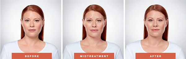 Double Chin Removal Scottsdale