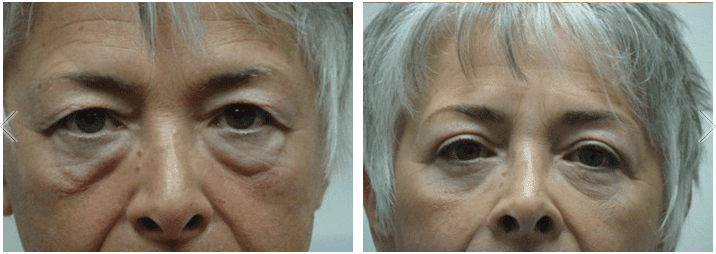 Asian Double Eyelid Surgery Before & After